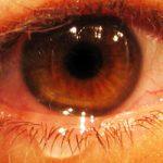 Eye_Injury_First_Aid-Creative_Safety_Supply-250x250